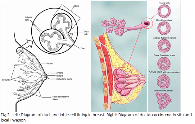 Breast cancer and the role of Chinese herbs