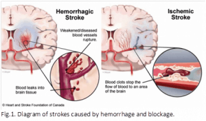Stroke diagram