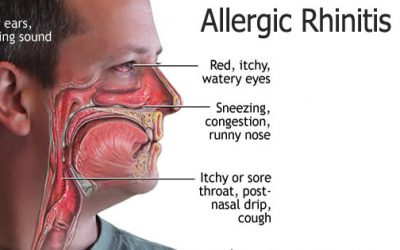 Hay fever Relief with Chinese Medicine